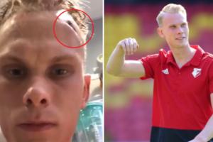 Шведський воротар в соцмережах показав моторошну травму голови